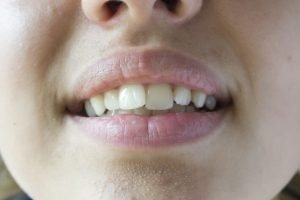 Crooked Teeth 1 300x200 - What Causes Crooked Teeth & Treatment Solutions
